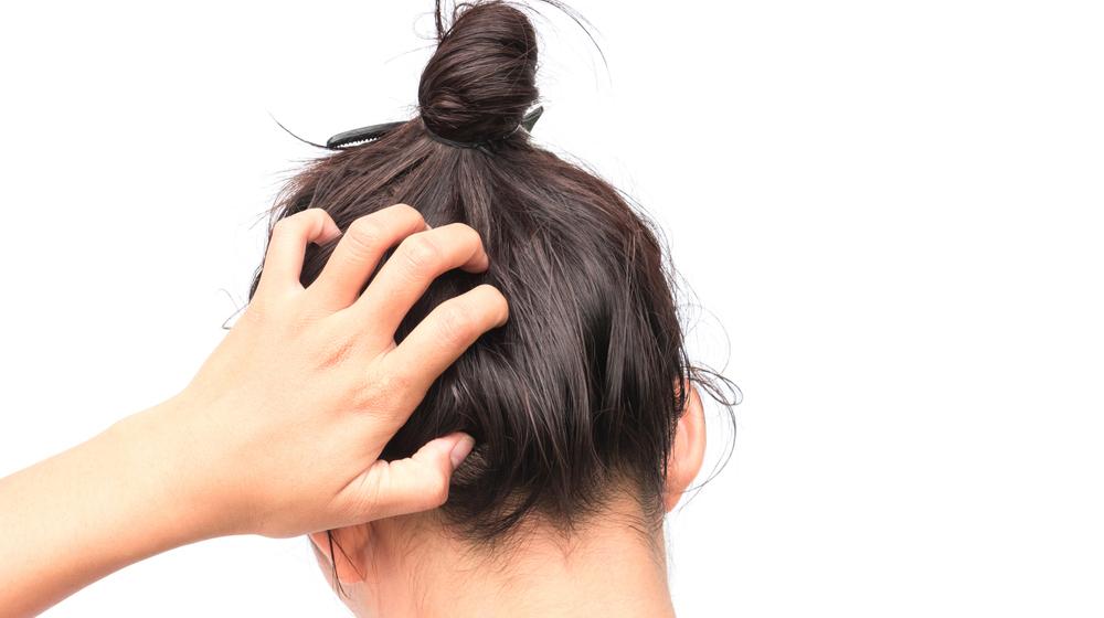 なぜか増える冬のフケ…… 健やかな頭皮を取り戻す正しいケア方法とは
